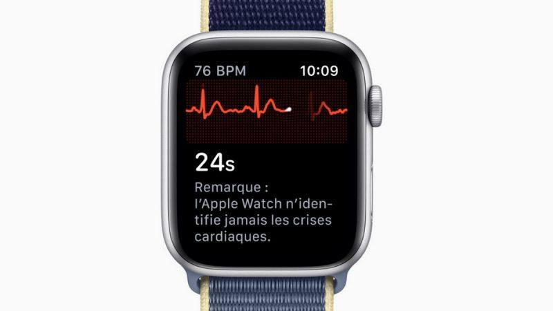 Suivi cardiaque avec l'Apple Watch : un médecin attaque la firme à la pomme
